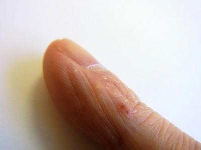 掌蹠膿疱症ビオチン治療