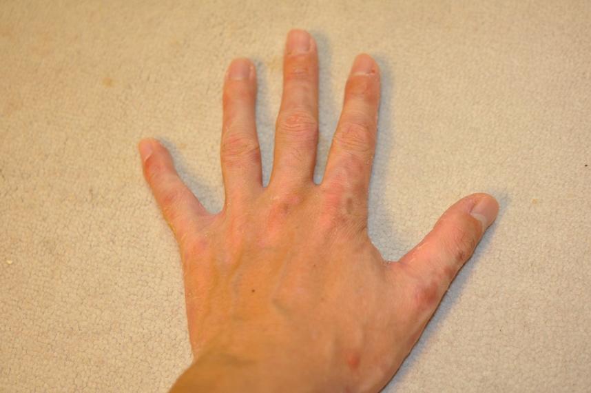 滴状乾癬/掌蹠膿疱症の治療 ...